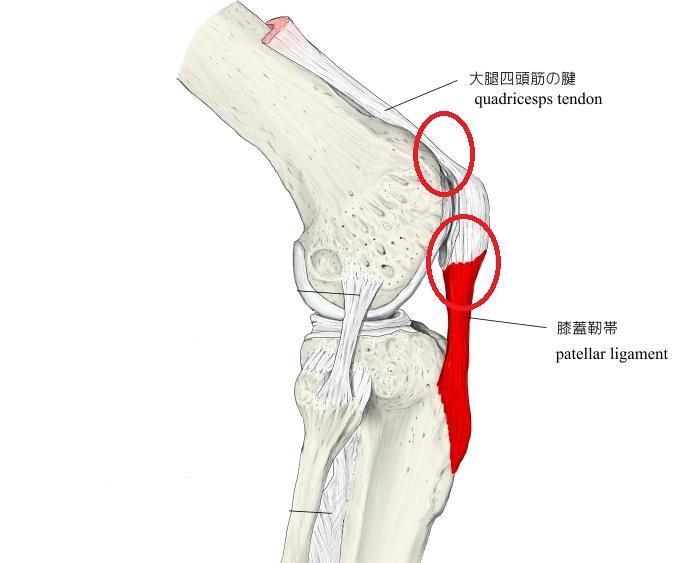 膝 手術 ジャンパー